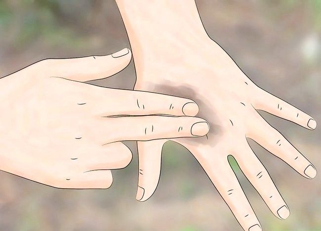 Titel afbeelding Get Tree Sap Off Your Hands Stap 7