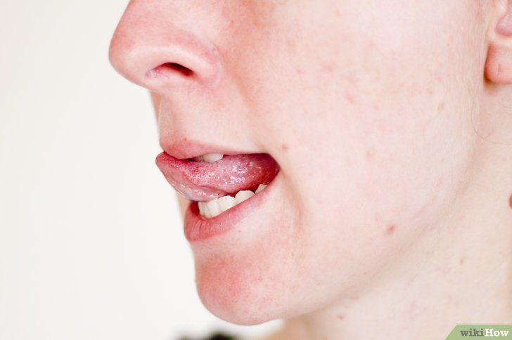 Krijg zachte lippen